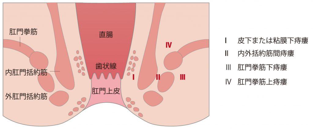 痔瘻の隅越分類